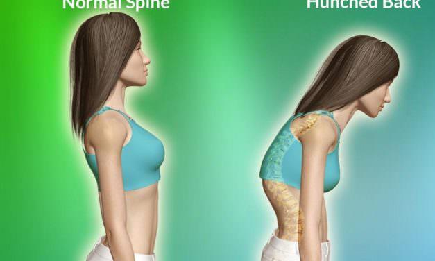 5个瑜伽体式改善含胸驼背✔